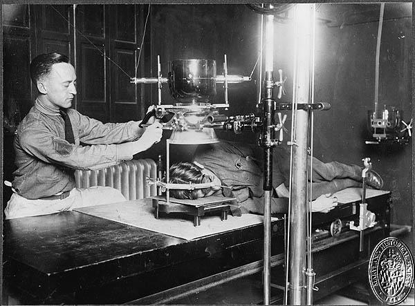 McFee - x-ray of head PP32 (Z24.609). Maryland Historical Society