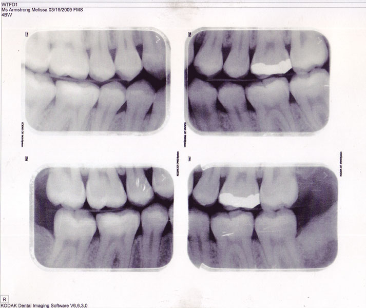 X-rays of my teeth, snagged from my last visit with the dentist.  They told me I need a porcelain crown...