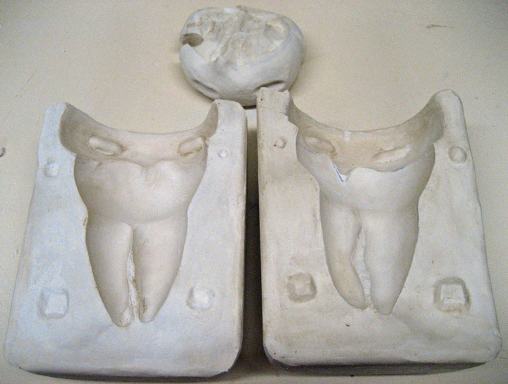 Completed mold of Casey's wisdom tooth