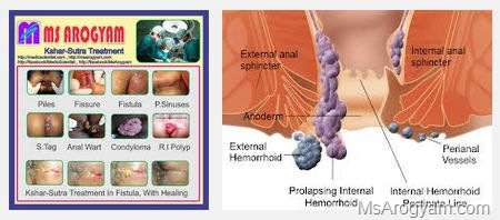 Home remedies for Hemorrhoids or piles 4
