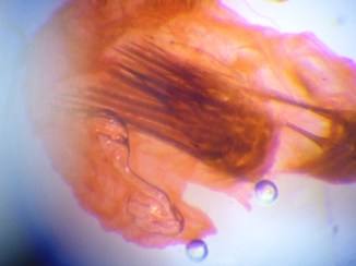 Close-up of the inner part of the aedeagus of the Svensson's Copper Underwing (Amphipyra berbera)