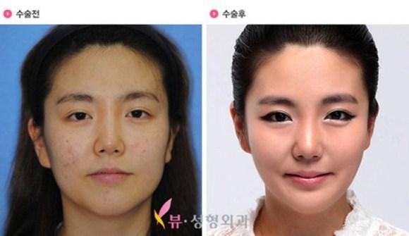 after korea midify 04