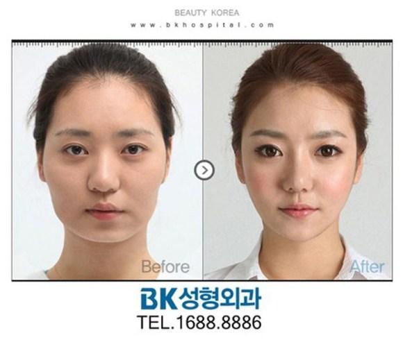 after korea midify 09