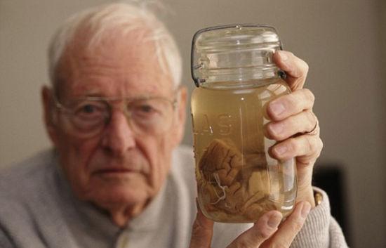 美國展出愛因斯坦大腦切片,這位天少的腦袋不來長這樣 ...