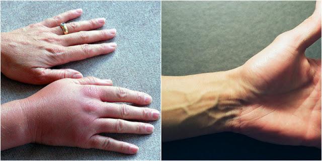 Онемение рук: причины, лечение при этих симптомах должно быть незамедлительным!