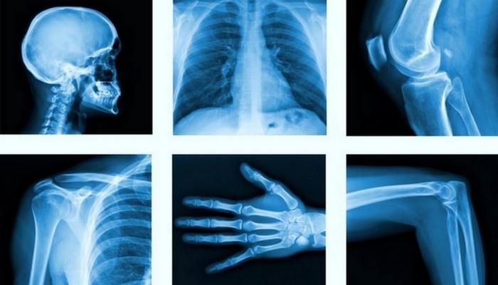 Изобретения в медицине, которые кардинально изменили мир