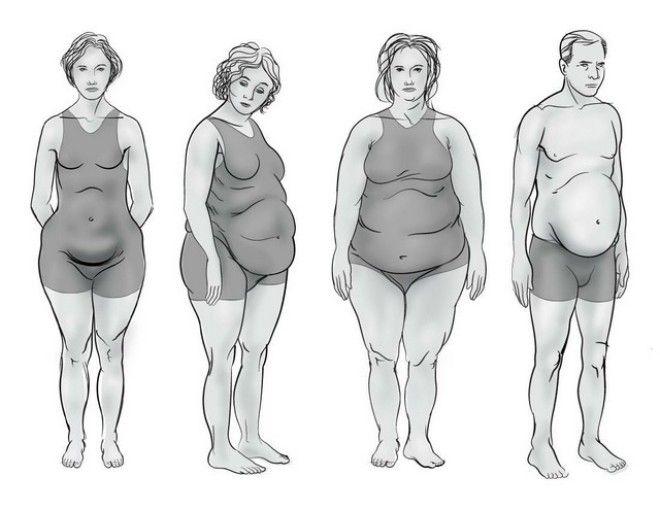 Какой у вас гормональный сбой определяем по типу фигуры
