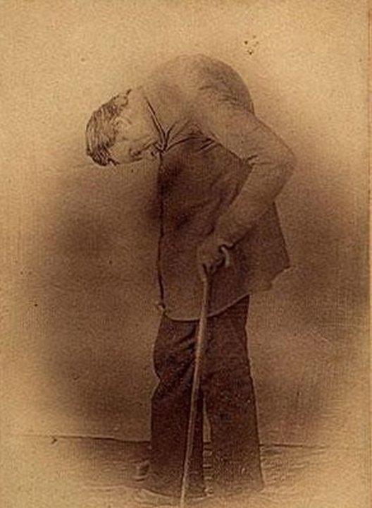 Леонард Траск. «Цирк уродов»: Страшное зрелище (фото)
