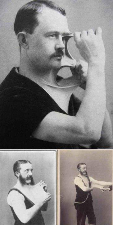 Феликс Верле (Felix Wehrle), человек – суперэластичная кожа. «Цирк уродов»: Страшное зрелище (фото)