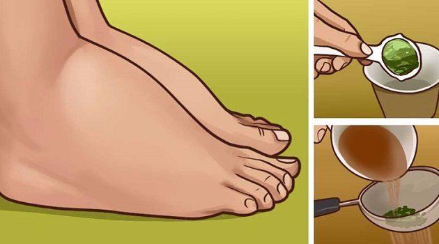 3 народных средства от отечности ног