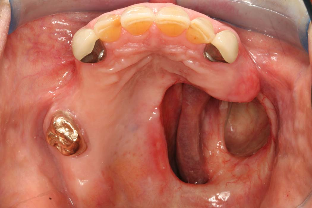 Partial Dentures And After