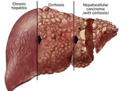 sintomas-de-hepatitis