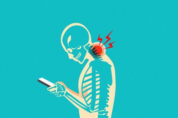 Síndrome do pescoço de texto: o que é?