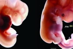 شكل الجنين إذا سقط في الشهر الاول