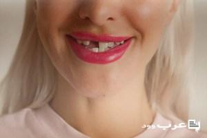 تفسير حلم تفتت الاسنان الاماميه للعزباء