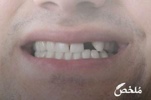 تفسير حلم سقوط تلبيسات الاسنان