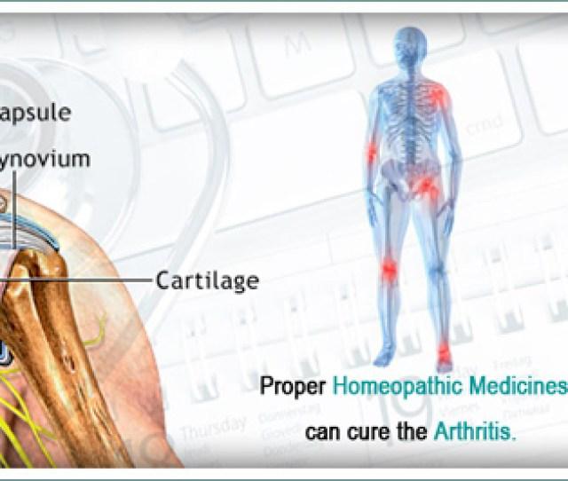 Homeopathy Treatment For Arthritis