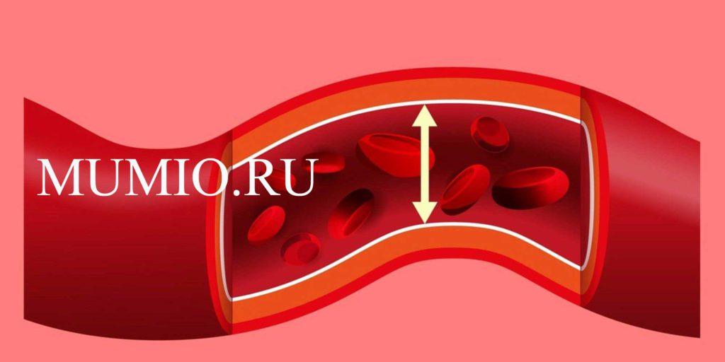 hipertenzija kaip gydyti liaudies gynimo video)