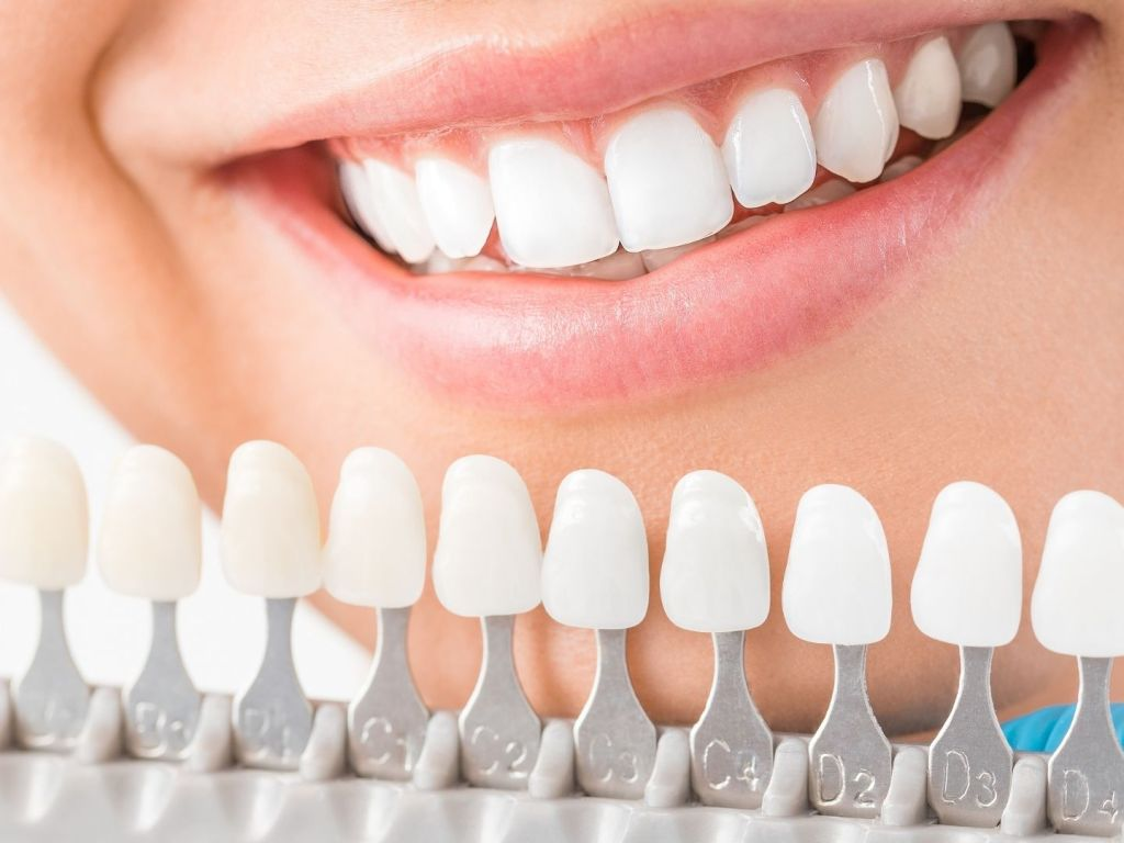 Cheapest Crest Whitening Strips in the UK