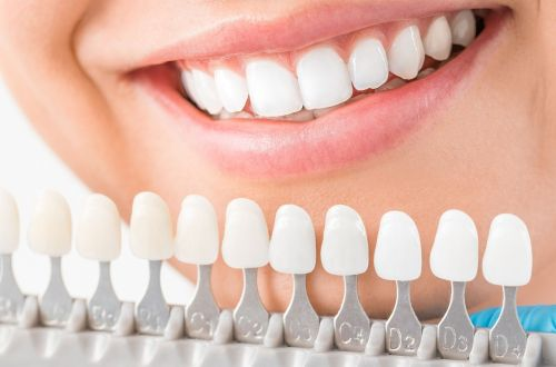 women who has found the cheapest Crest Whitening Strips in the UK