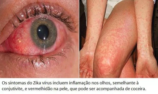 Zika vírus (Foto: Reprodução/Edição MN)