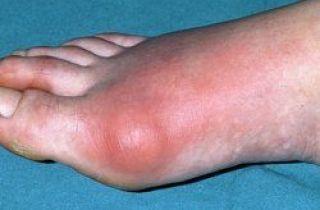 ácido úrico o gota en el pie