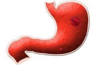 estómago