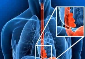 varices esofágicas