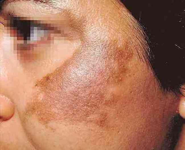 manchas escuras no corpo