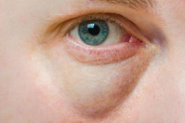 como diminuir bolsa embaixo dos olhos 300x200 - Creme para bolsas nos olhos e olheiras