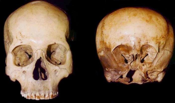 """w7041 1 - El cráneo """"Starchild"""" El niño de las estrellas."""