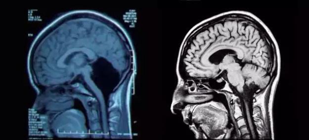 img 0314 - El extraño caso de una mujer sin cerebelo desconcierta a los médicos