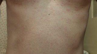 医療レーザー脱毛後の胴体部分の炎症状態:ゴリラクリニック体験