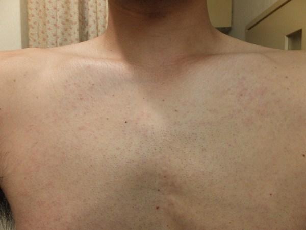 医療レーザー脱毛後の鎖骨回りの炎症状態:ゴリラクリニック体験