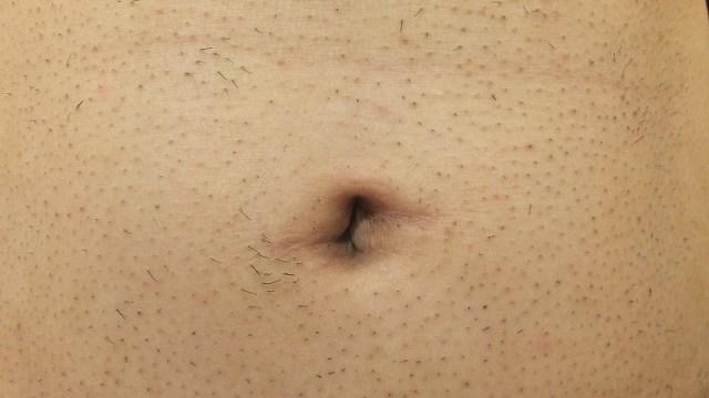腹毛も減った!医療レーザー脱毛後の写真