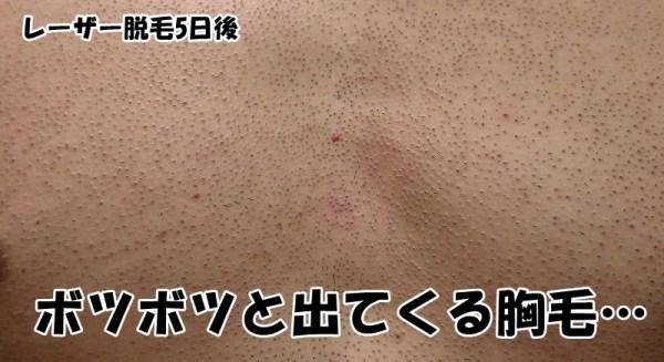 皮膚上に浮き上がってきた胸毛たち:レーザー脱毛5日後