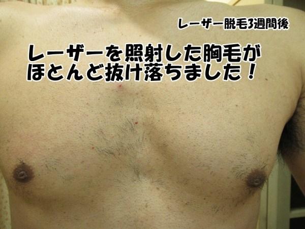 医療レーザー脱毛3週間後胸毛:ゴリラクリニック