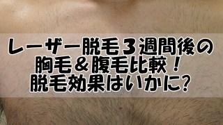 レーザー脱毛3週間後の胸毛&腹毛脱毛比較!効果は?