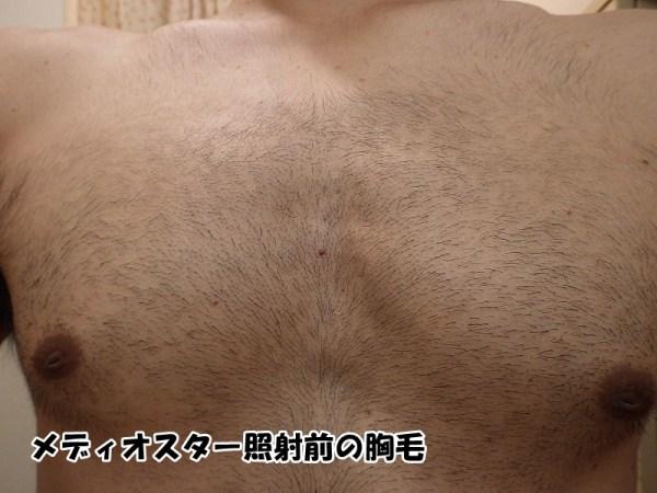 メディオスターNeXTPRO照射前の胸毛