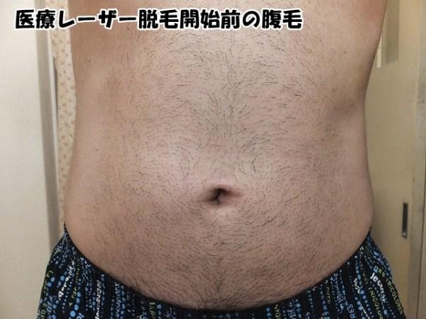脱毛開始前の腹毛