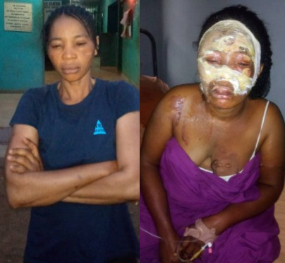 Single mum of two arrested for pouring hot water on woman who accused her of dating her husband (photos)