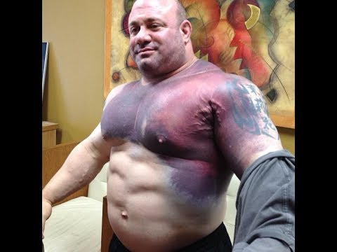injured bodybuilder