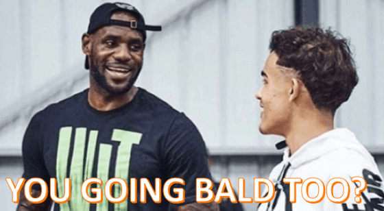 Trae Young Bald