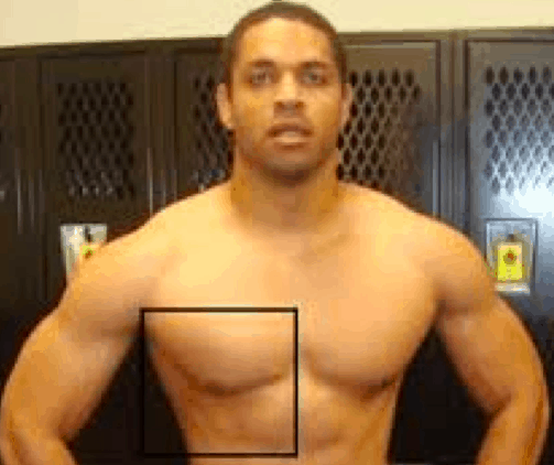 hodgetwins steroids
