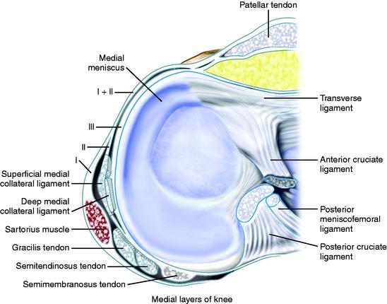 Complex Medial Patellar Retinaculum