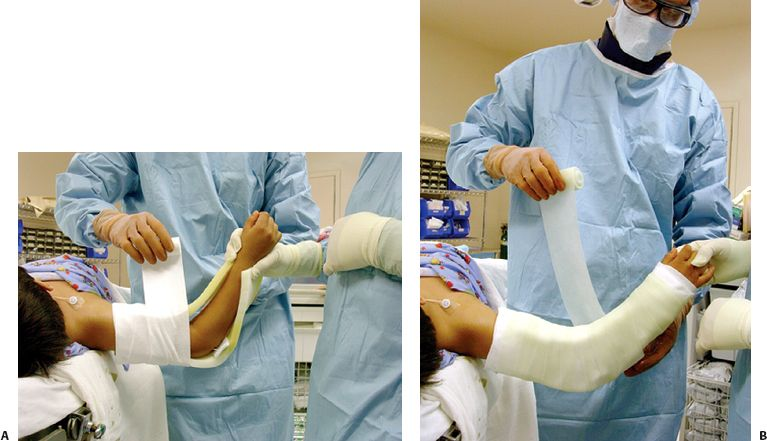 Cast and Splint Immobilization, Remodeling and Special