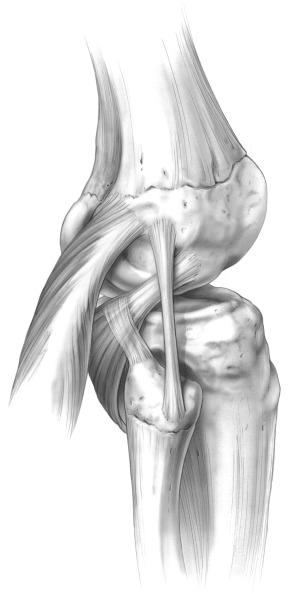 The treatment of combined posterolateral knee injuries and anterior fig 1041 ccuart Images
