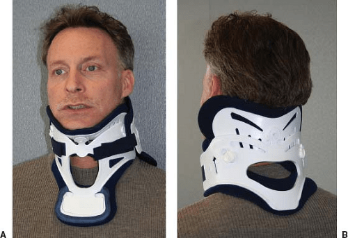 Bracing and Orthoses | Musculoskeletal Key