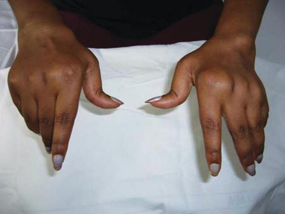 Photo of two hands depicting typical changes in the hands in rheumatoid arthritis. The right hand is normal while the left hand has a lump found on the joint of the index finger.