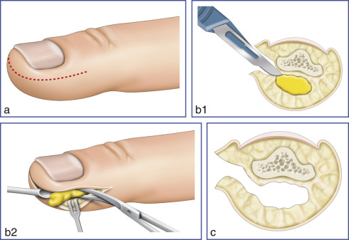 Surgical Treatment of Hand Infections | Musculoskeletal Key